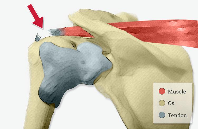Chirurgie de la rupture de la coiffe des rotateurs