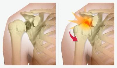 Chirurgie de la luxation de l'épaule