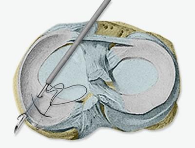 Chirurgie du ménisque