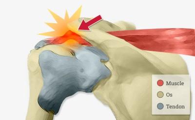 Tendinite chronique de l'épaule avec ou sans calcification