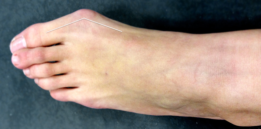 Hallux valgus ambulatoire
